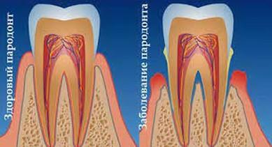 Скин актив крем от псориаза
