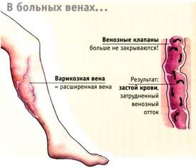Клиника для лечения варикоза в москве